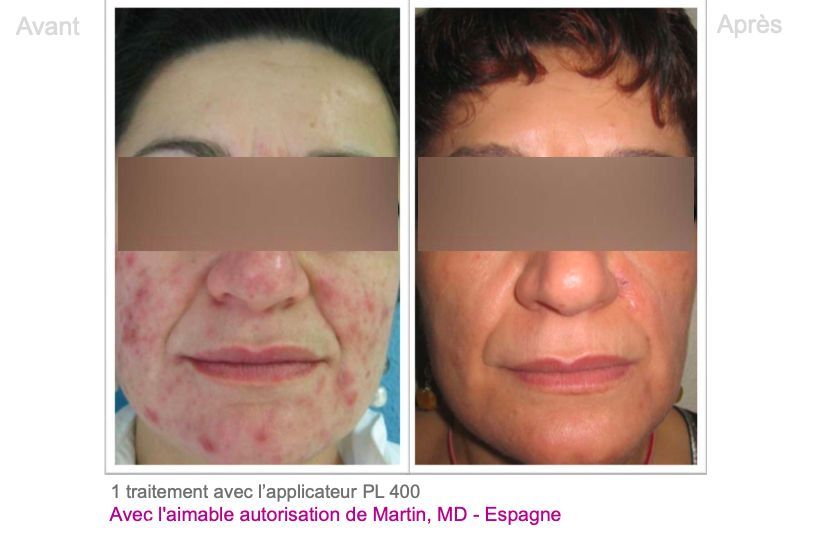Exemple traitement acné - Dermo Laser Lyon