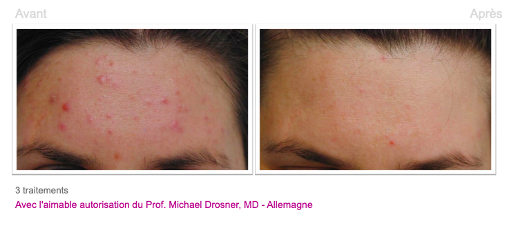 Traitement acné - Dermo Laser Lyon