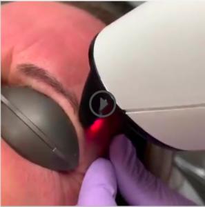 Lissage cutané - Dermo Laser Lyon