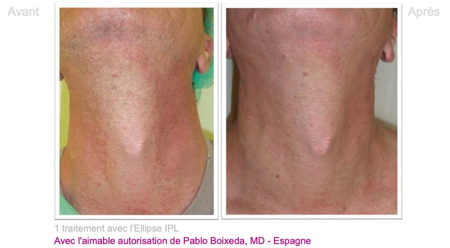 Poïkilodermie de Civatte - Dermo Laser Lyon 1
