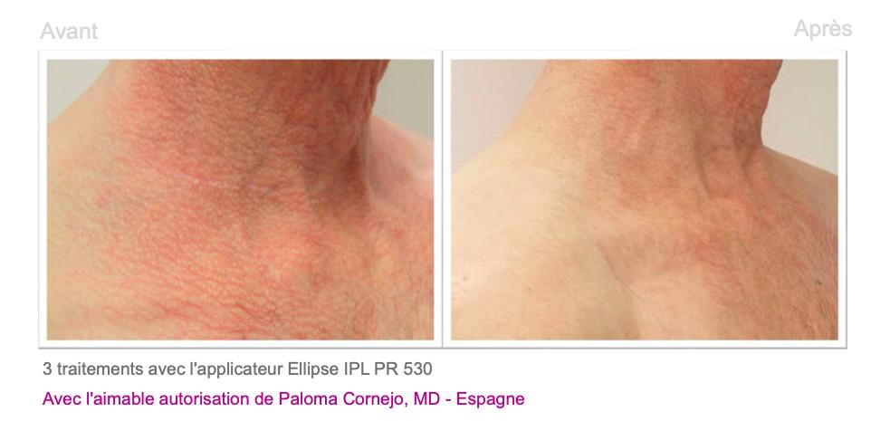 Poïkilodermie de Civatte - Dermo Laser Lyon 2