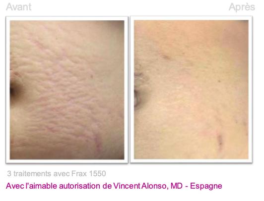 Traitement vergetures 2 - Dermo Laser Lyon