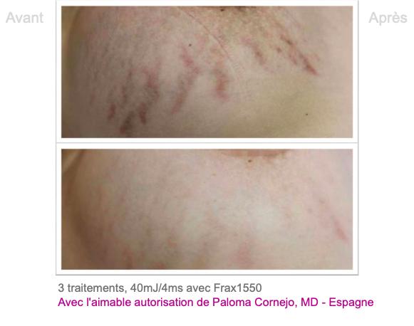 Traitement vergetures - Dermo Laser Lyon