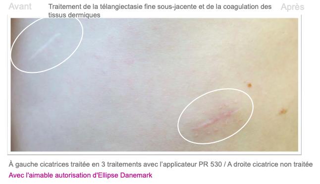 Cicactrices 1 - Dermo Laser Lyon