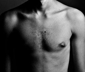 Resurfaçage cicatricielle - Dermo Laser Strasbourg
