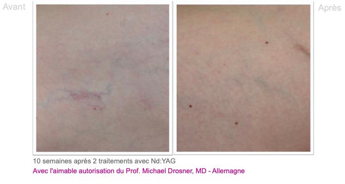 Varicosités des membres inférieurs 1 - Dermo Laser Lyon