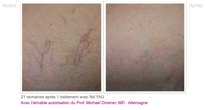 Varicosités des membres inférieurs 2 - Dermo Laser Lyon