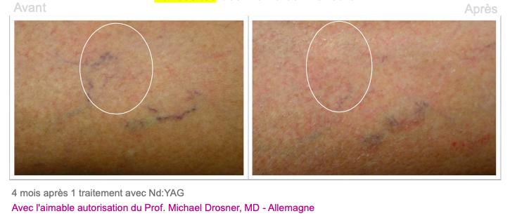 Varicosités des membres inférieurs 3 - Dermo Laser Lyon