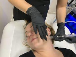 Principes actifs utilisés Hydrafacial - Dermo Laser Strasbourg