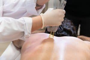 Quand faut-il se raser pour une épilation laser - Dermo Laser Strasbourg