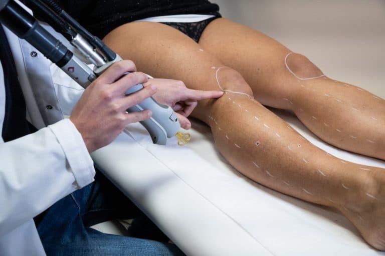Combien de séances pour une épilation laser - Dermo Laser Strasbourg