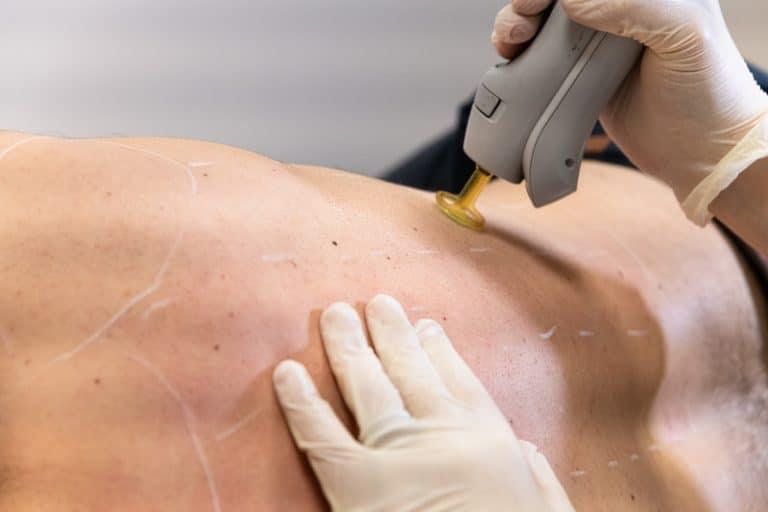 L'épilation laser pour les hommes - Dermo Laser Strasbourg